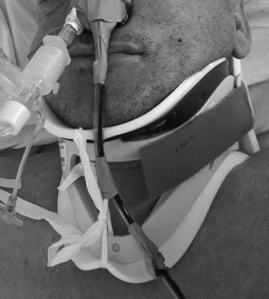Sengstaken-Blakemore Tube Tied to a Cervical Collar