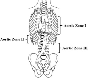 Zones of the Aorta